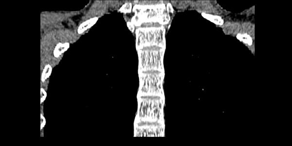 coloana-cervicala-ct_mpr-range2_-0001